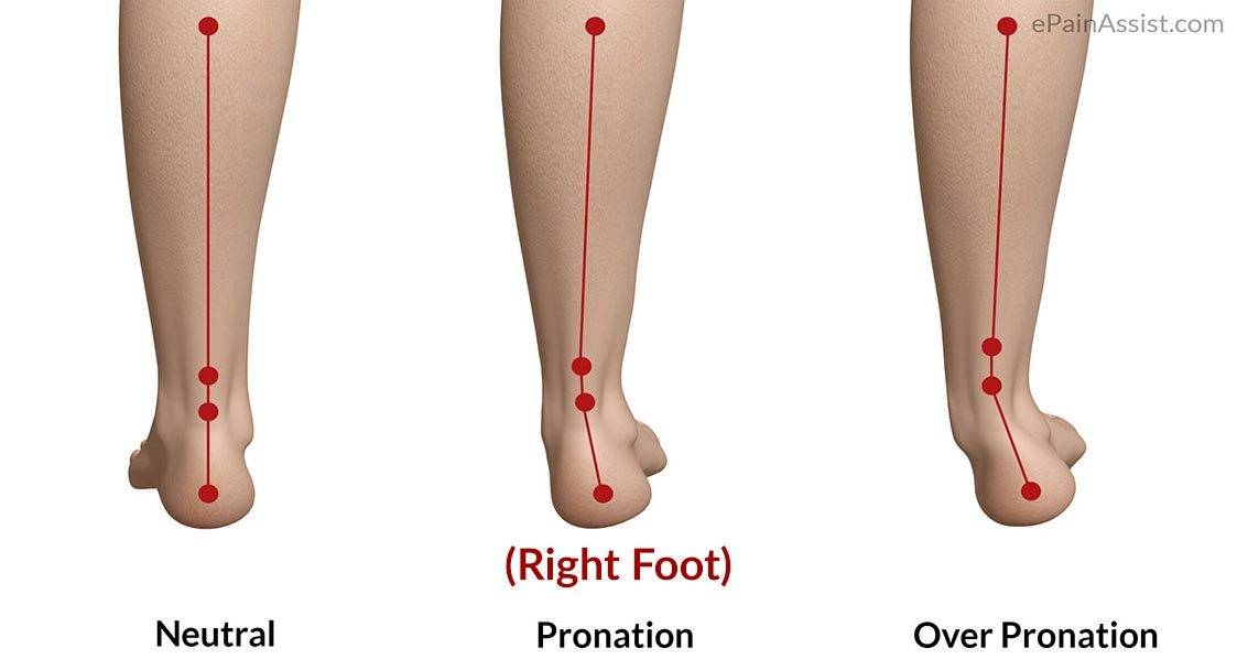 The Three Kinds of Foot Strikes: Pronation, Supination, and Neutral